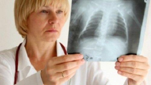 В Казахстане снижена заболеваемость туберкулезом